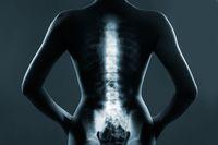 Odliczenie leczenia w uldze rehabilitacyjnej