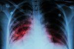 Związek śmierci pracownika z chorobą zawodową