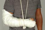 Odszkodowanie za złamaną rękę na śliskim chodniku
