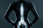 Ulga rehabilitacyjna: zabiegu medycznego w PIT nie odliczymy
